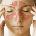Хронический насморк и синусит