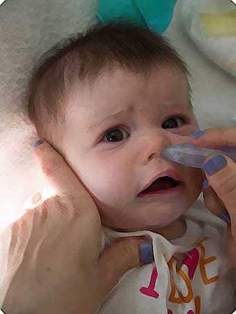 Что делать если у грудного ребенка насморк