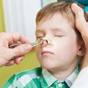 Аденоиды 1, 2 степени у детей: лечение